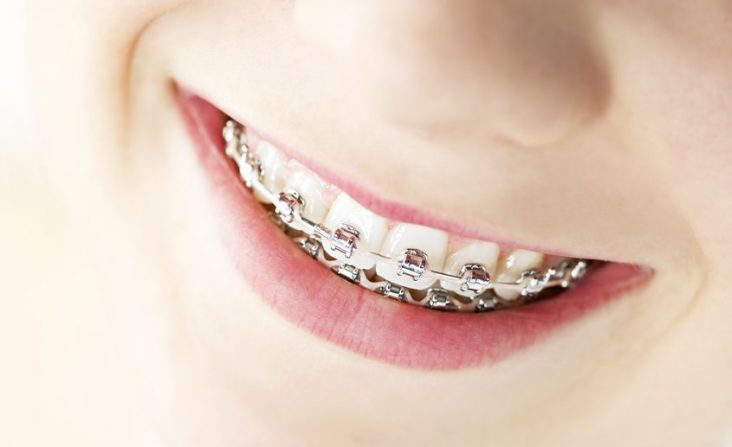 13306524 - closeup on braces and white teeth of smiling girl